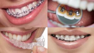 Photo de tous les types d'appareils dentaires