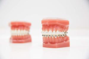 Orthodontie adulte prix