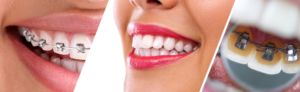 Orthodontie linguale adulte - photo