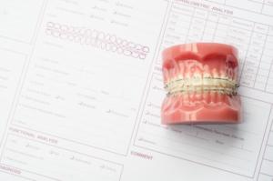 Prix orthodontie adulte