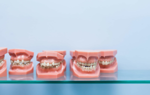 remboursement mutuelle orthodontie adulte