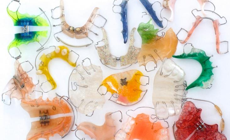 appareil dentaire en orthodontie fonctionnelle
